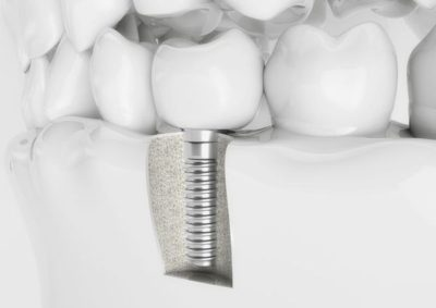 woodland hills dental implants